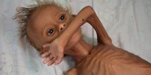BAMBINI  AFFAMATI  A  MORTE nello Yemen